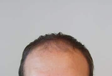 Patient avant la greffe de cheveux chez Hairpalace.