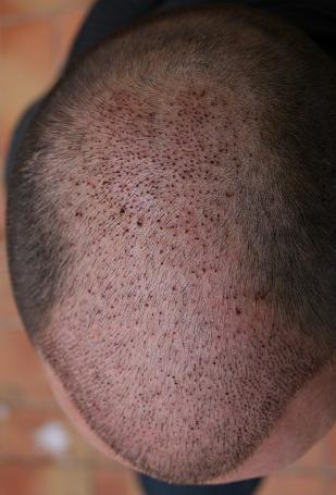 Résultat 1 semaine apres la greffe de cheveux.