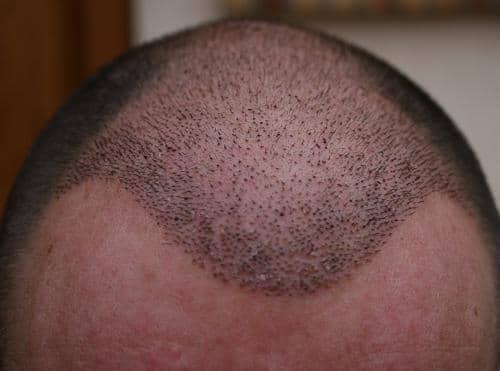 Ligne frontale 1 semaine apres greffe de cheveux.