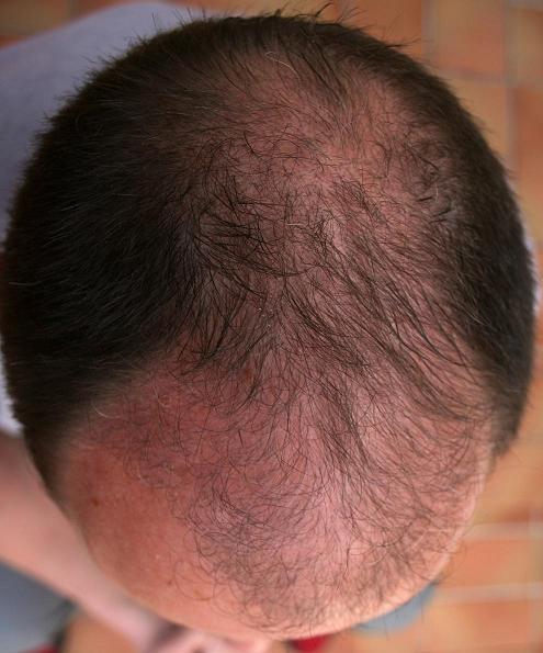 Résultat 3 mois apres la greffe de cheveux chez Hairpalace.