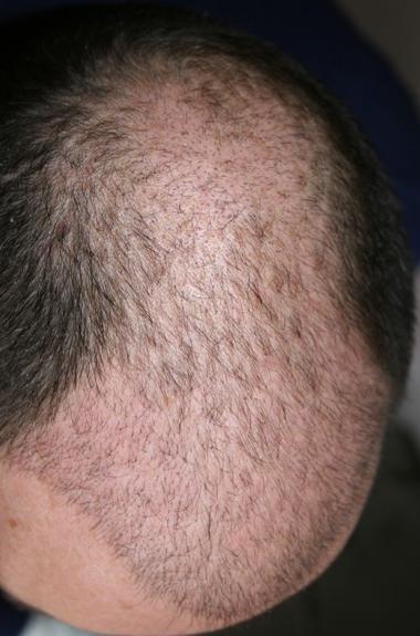 Résultat 3 semaines apres la greffe capillaire.