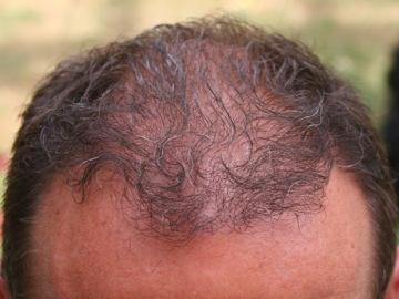 Resultat 6 mois apres la greffe de cheveux