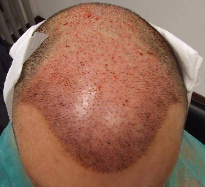 Resultat apres l'implantation de cheveux.
