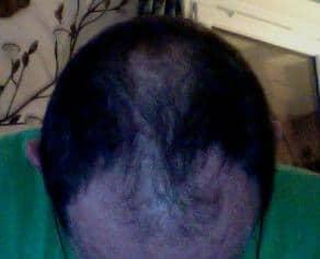 Patient Hairpalace avant la greffe capillaire.