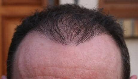 Resultat d'une opération FUE - greffe de cheveux.