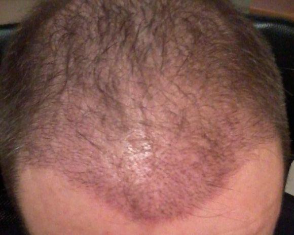 Résultat 2 semaines apres l'implantation capillaire.