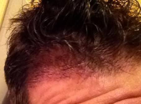 Résultat de 3 semaines apres greffe de cheveux.