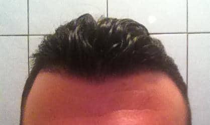Résultat de 3 semaines apres la greffe de cheveux.