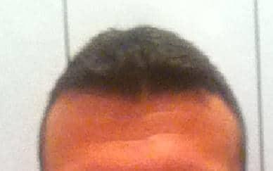 Résultat de 6 mois apres une greffe de cheveux chez HairPalace.