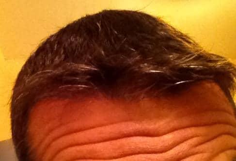 Résultat 6 mois apres la greffe de cheveux.