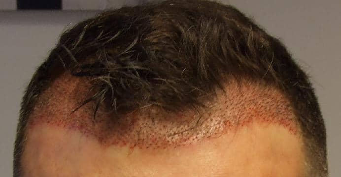 avis sur hairpalace patient a recu 2000 cheveux lors d 39 une greffe. Black Bedroom Furniture Sets. Home Design Ideas