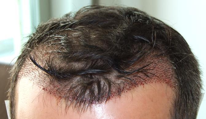 Patient apres la greffe de cheveux.