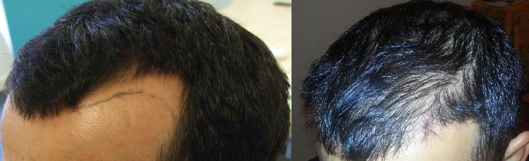 avant apres greffe de cheveux resultat