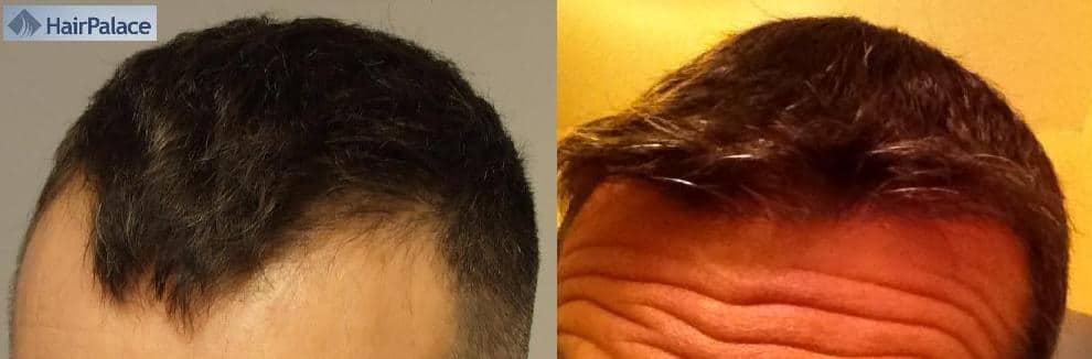 Photo avant apres chez la clinique capillaire HairPalace.