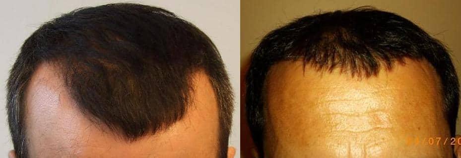 avant apres la greffe de cheveux2 resultat 1 an