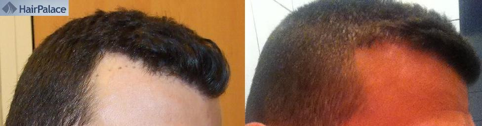 Avant et apres l'implantation capillaire. Résultat de HairPalace.