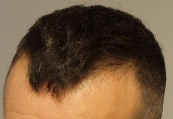 Patient de HairPalace avant la greffe  de cheveux.