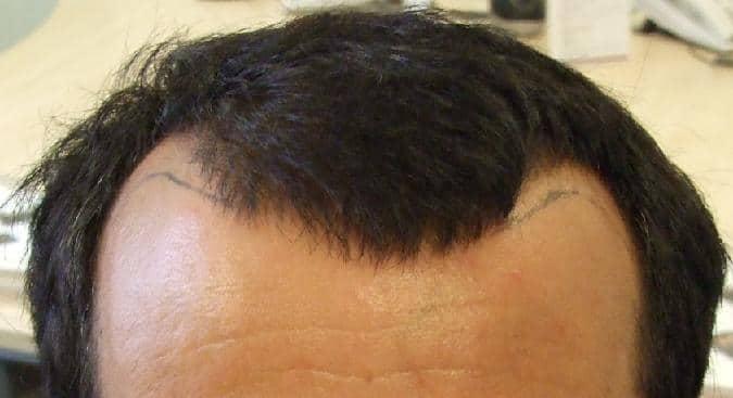 Patient HairPalace avant la greffe de cheveux