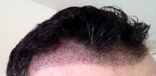 Photo du patient HairPalace 1 semaine apres la greffe de cheveux.