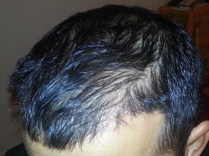 Patient HairPalace 6 mois apres la greffe capillaire.
