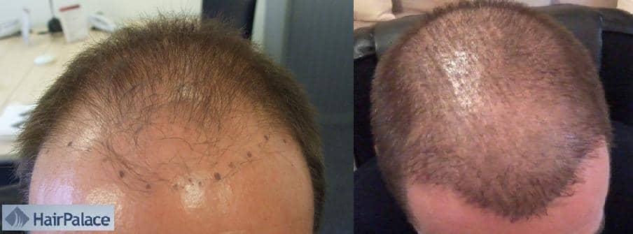 greffe de cheveux resultat avant apres