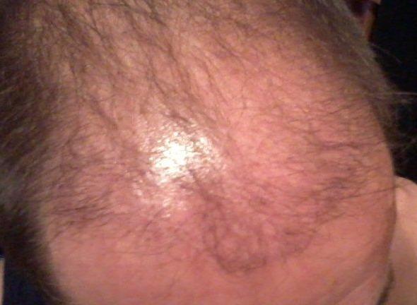 3 mois apres la greffe capillaire.