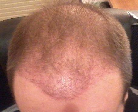 3 semaines apres une greffe de cheveux.
