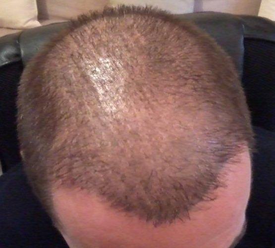 Resultat de 6 mois apres une greffe de cheveux.