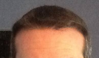 Résultat final d'une greffe de cheveux faite á la clinique HairPalace.