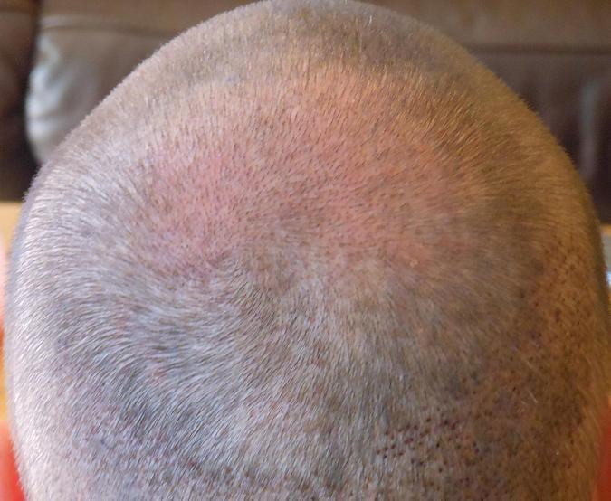 Controle d'1 semaine apres la greffe de cheveux.