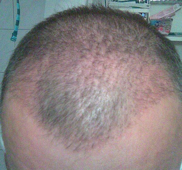 Résultat de 3 mois - greffe de cheveux.
