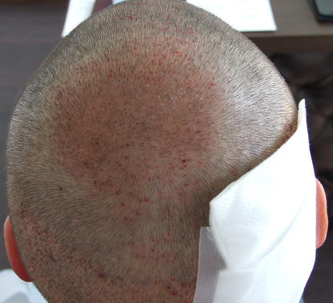 Patient apres l'implant capillaire.