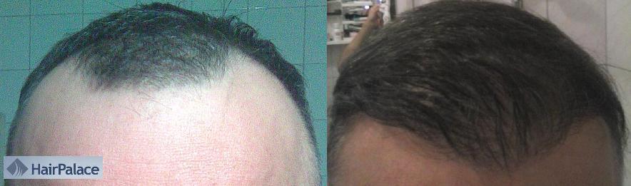 avant apres greffe cheveux hairpalace