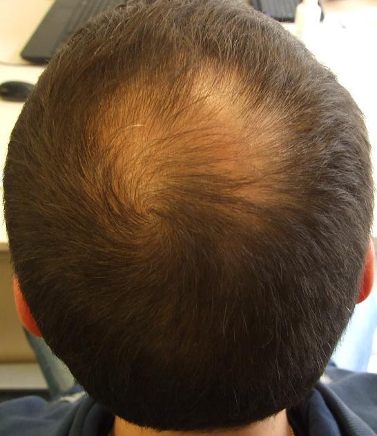 avant greffe de cheveux derriere