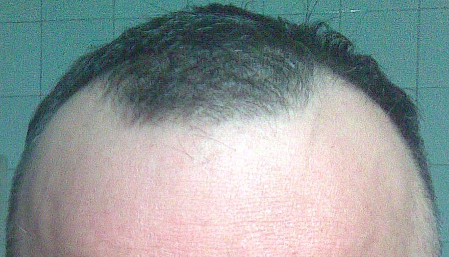 Tete avant l'opération de greffe de cheveux contre la calvitie.