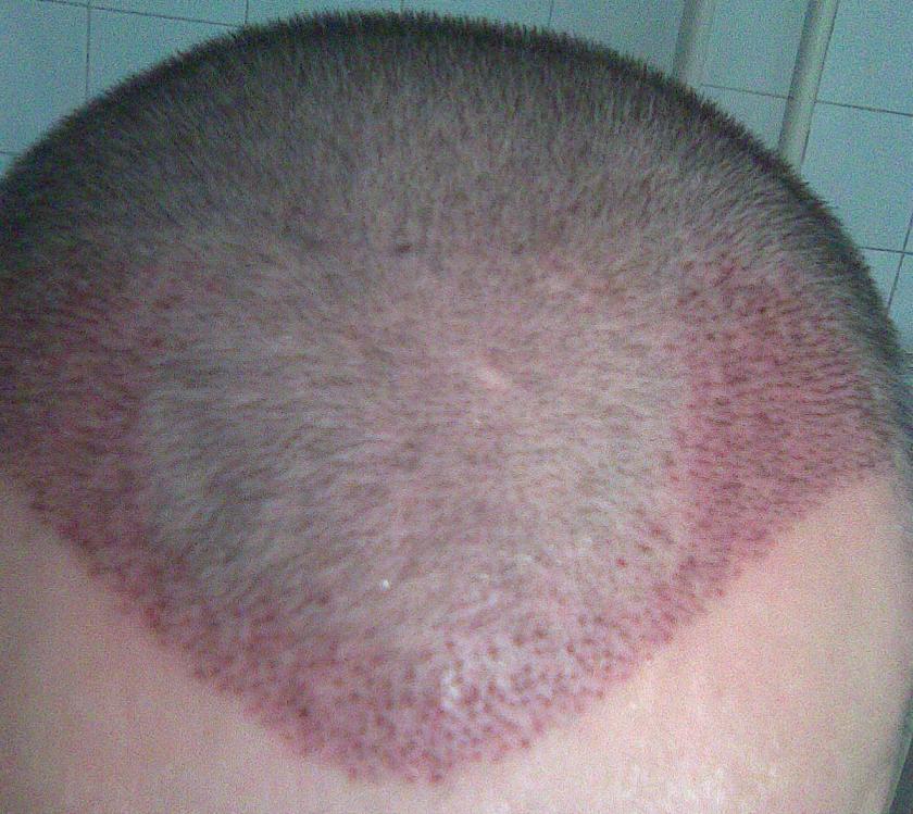 Patient 1 semaine apres la greffe de cheveux.