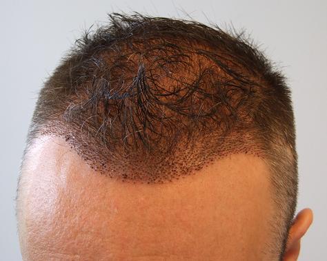 Résultat 1 semaine apres la greffe de cheveux chez hairpalace.