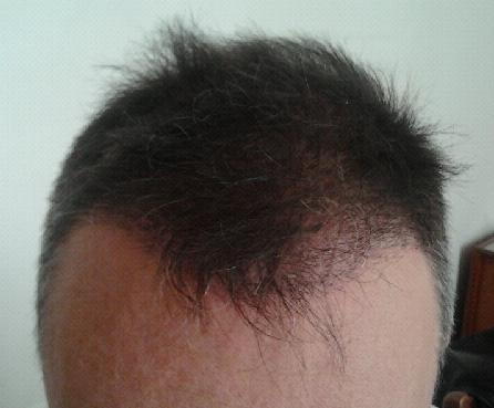 Controle 3 semaines apres la greffe capillaire chez Hairpalace.