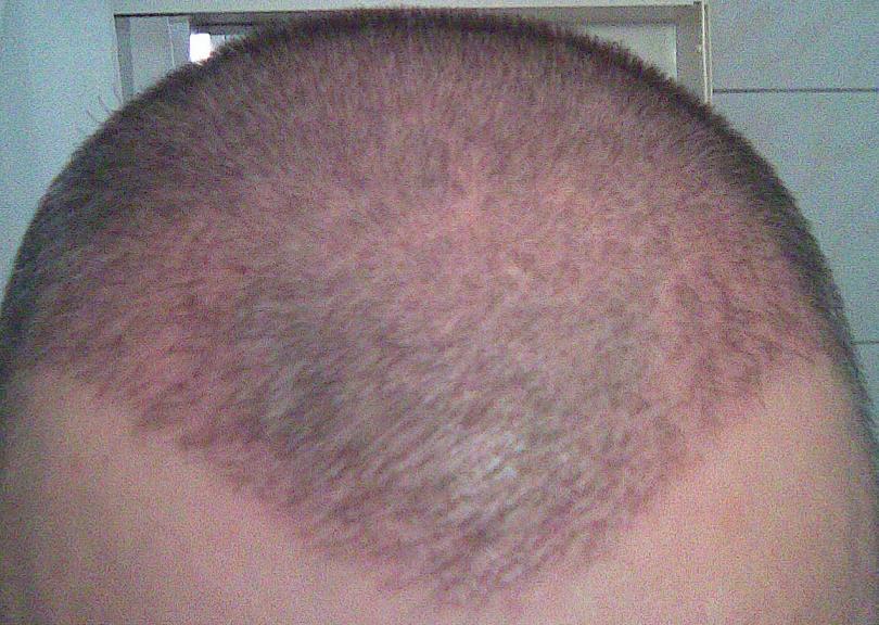 Résultat d'une greffe capillaire - 3 semaines.