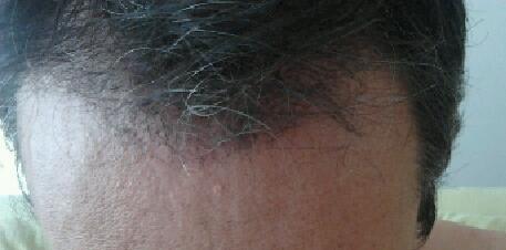 3 mois apres l'implantation capillaire chez HairPalace.