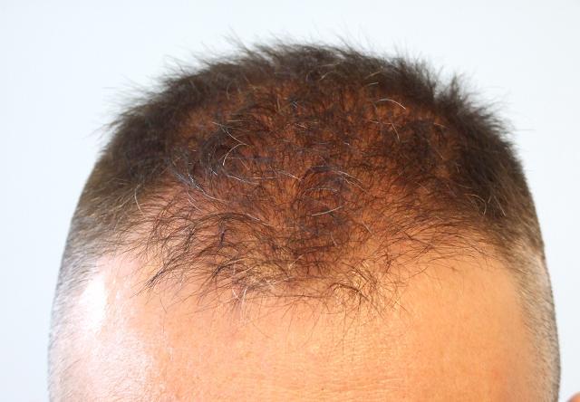 Tete du patient avant la greffe de cheveux FUE.