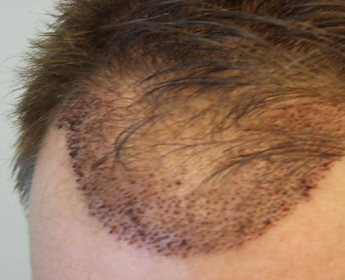 Résultat 1 semaine apres une greffe capillaire.
