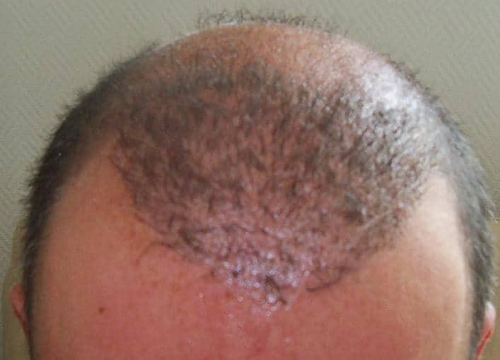 Controle de 3 semaines apres une greffe capillaire chez HairPalace.