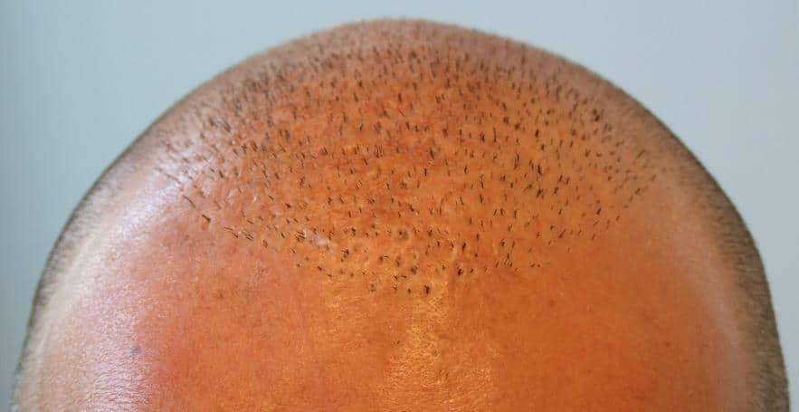 Tete du patient apres qu'on a coupé les cheveux.