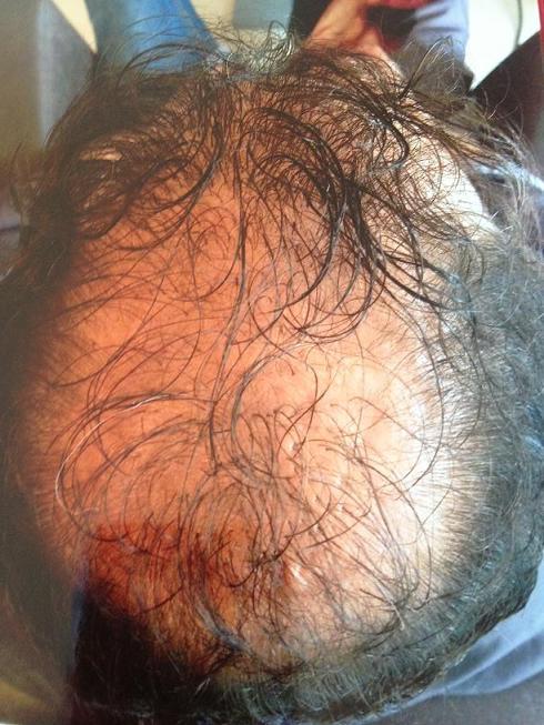 Tete du patient avant la greffe de cheveux.