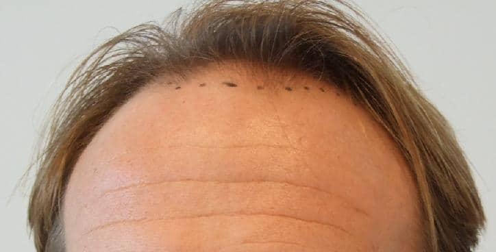 Avant la greffe de cheveux.