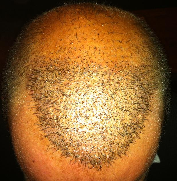 Patient 1 semaine apres une greffe de cheveux.
