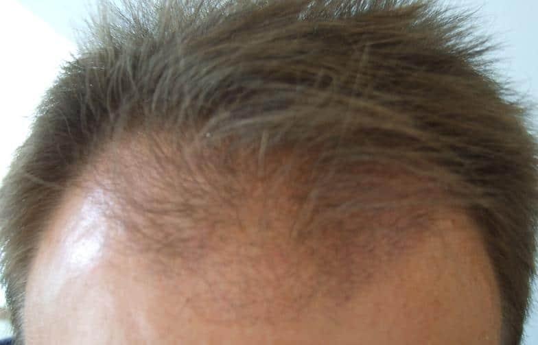 3 mois apres une greffe de cheveux chez HairPalace.