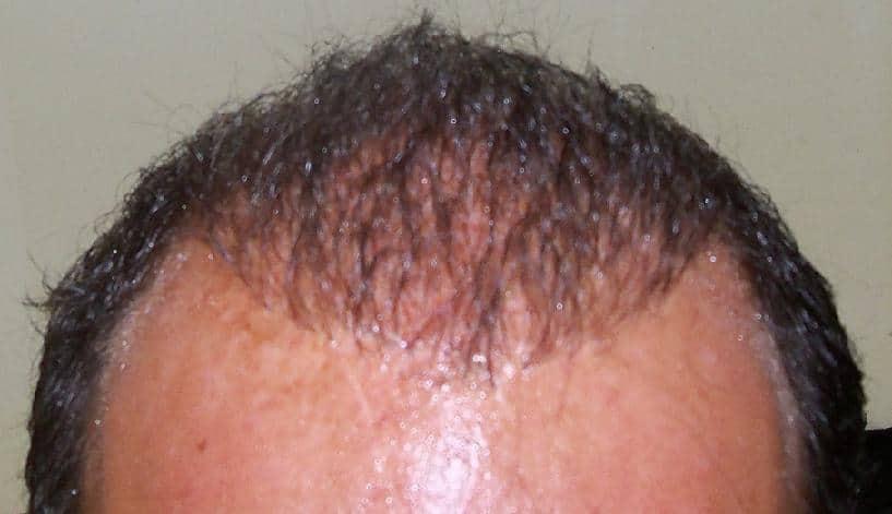 Photo de 3 mois apres la greffe de cheveux.