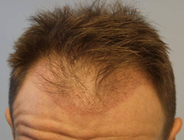 Controle de 3 semaines apres la greffe de cheveux.